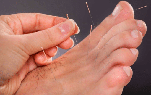 explanation of dry needling and how this applies to podiatry service