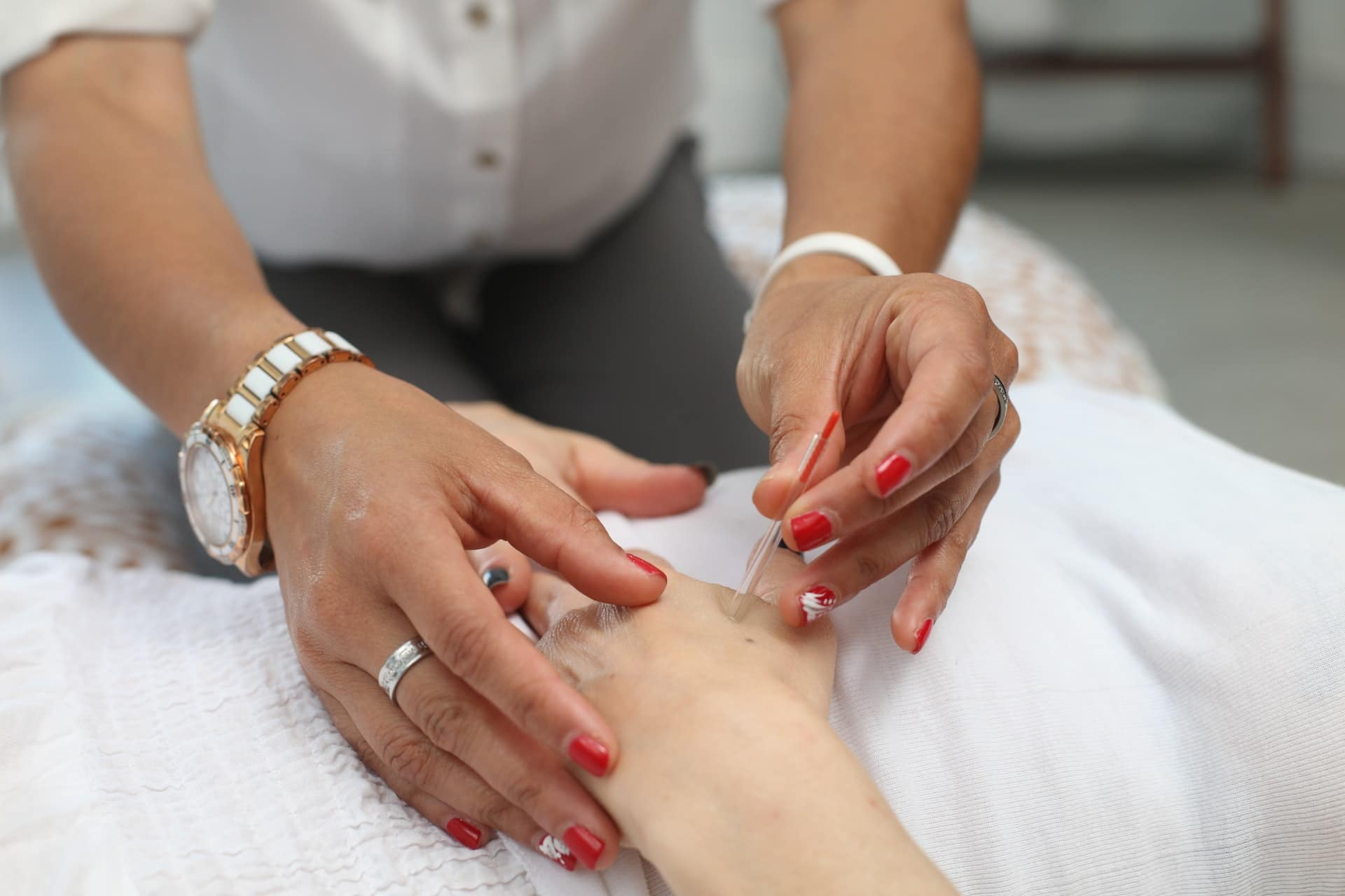 Comparison of dry needling and acupuncture service